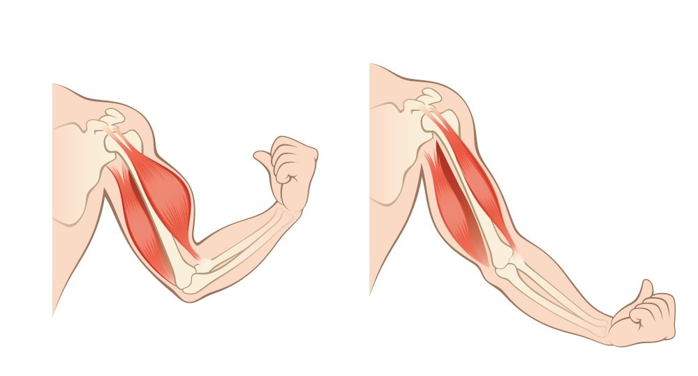 Muscle Atrophy and Weakness After Joint Replacement Surgery